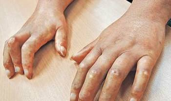 皮肤变硬是硬皮病吗