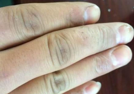 手癣生发的原因与症状表现