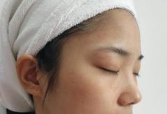 晒斑及其发病原因是什么