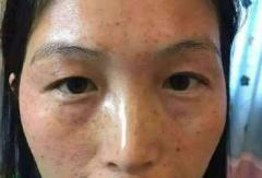 防止蝴蝶斑疾患呈现的日常护理事项