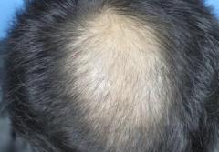 病态性脱发形成的原因与症状特点的相关图片