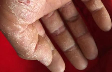 手部形成脱皮状况的护理办法