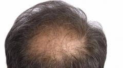 导致脱发疾患生成的原因的相关图片