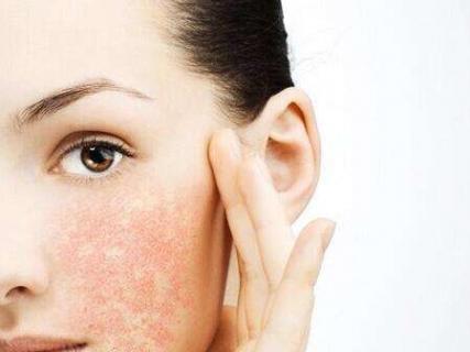 面部发生皮肤过敏都会有什么症状