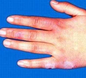 患有结节性红斑要怎么样治疗护理的相关图片