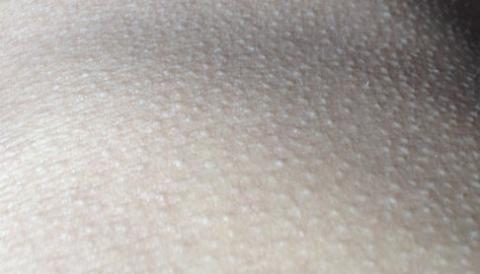 身体鸡皮肤怎么样护理