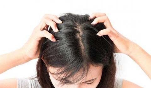 为什么年轻人会脱发的相关图片